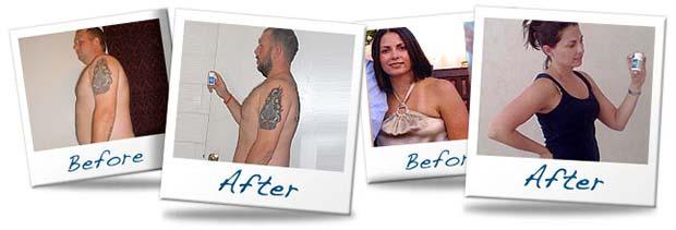 Avant et après la perte de poids